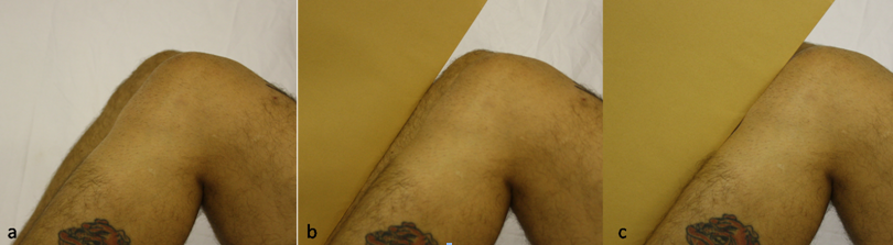 X-ray packet sign showing normal gap between the edge and the patella (b) and the loss of gap (c) in PCL insufficiency