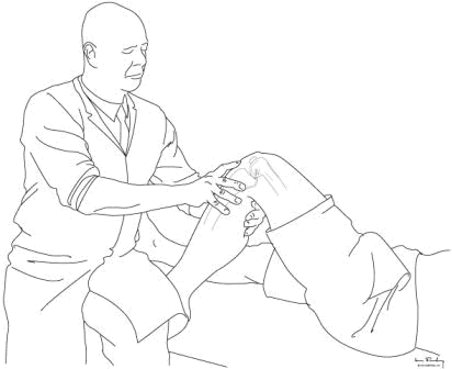 Posterior draw test. The tibia is pushed posteriorly and the thumb is used to feel the step off between the tibial margin and the exposed articular end of the Femur