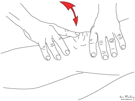 Patella tap sign, bouncing the patella off the trochlea to demonstrate effusion