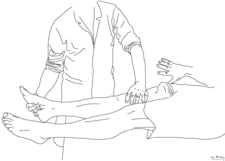 The apprehension sign, illustrating nervousness of the patient when attempted subluxation is gently performed