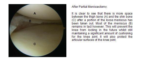 post-partial-meniscal-surgery